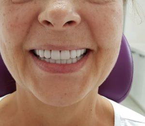 виниры в стоматологии